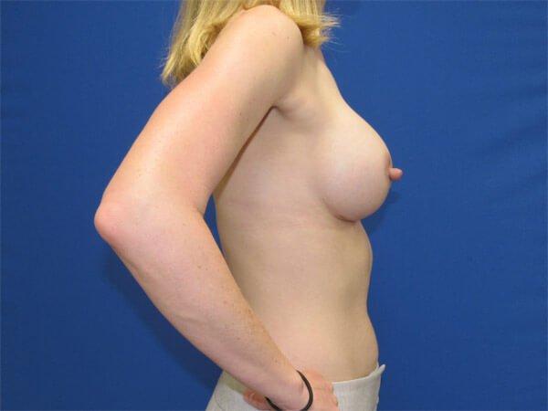 , Breast Augmentation Case #12