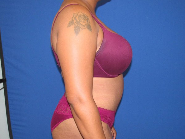, Tummy Tuck Case #12