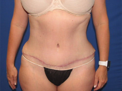 , Tummy Tuck Patient #13