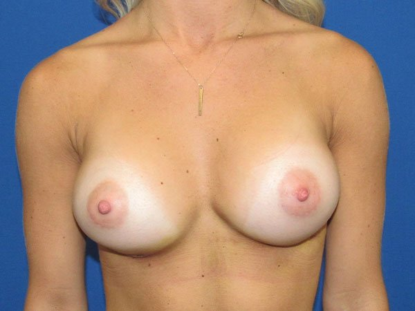 , Breast Augmentation Case #18