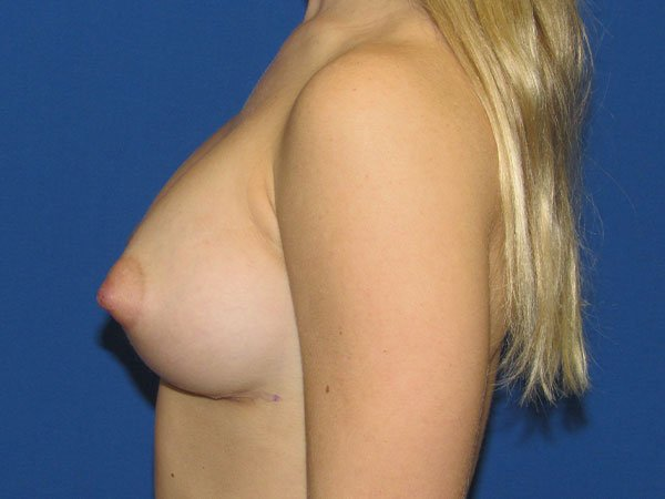 , Breast Augmentation Case #19