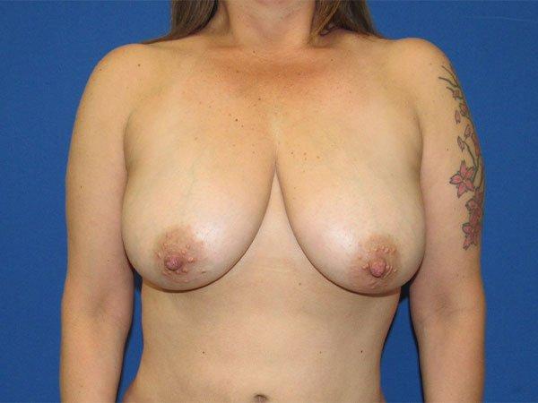 , Liposuction Case #2