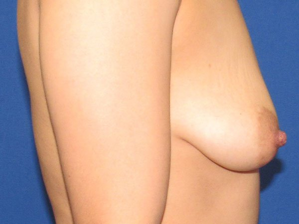 , Breast Augmentation Case #17