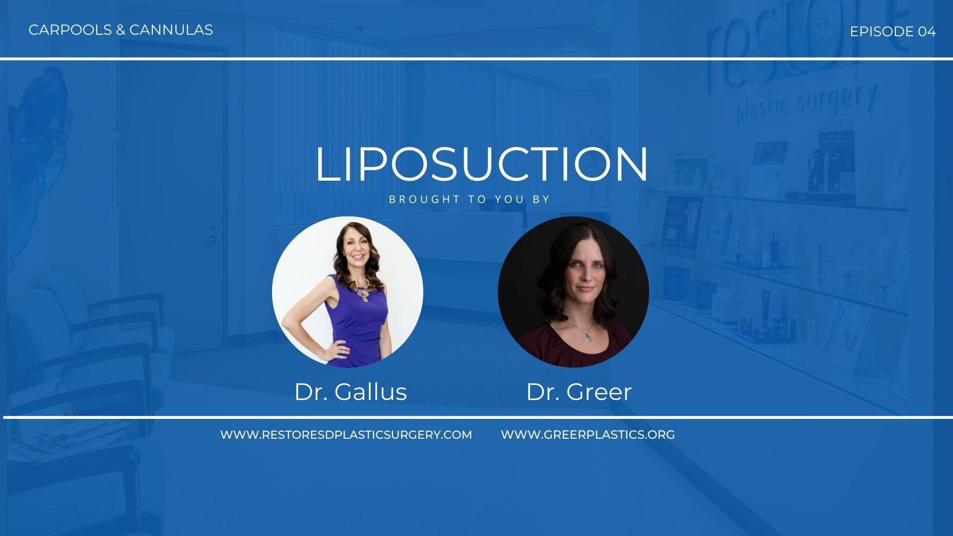 Carpools & Cannulas Episode 4 Liposuction
